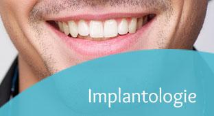 implantologie-teaser