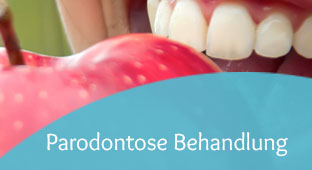 parodontose-behandlung-teaser